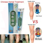 Leg Treatment Medical Varicose Veins Cream Angiitis Treatment Relief Phlebitis  Remedy Inflammation Blood Pain Varicosity Removal Herbal Cream
